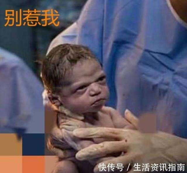 剖腹產寶寶與醫生對視現「眼神殺」,偏不哭,網友不好惹!